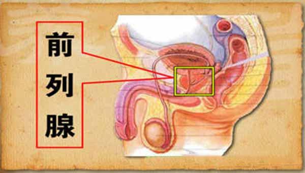 前列腺炎症状注意事项