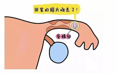 宫外孕治疗诊断恢复